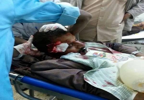 مسلحون مجهولون يغتالون مواطناً (شرق اليمن)
