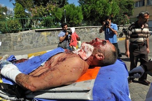 امرأة تفجر نفسها في مركز شرطة باسطنبول التركية (إضافــة)