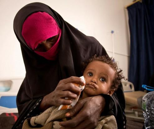 تقرير أممي: اليمن تتصدر قائمة البلدان التي تعاني من انعدام الأمن الغذائي