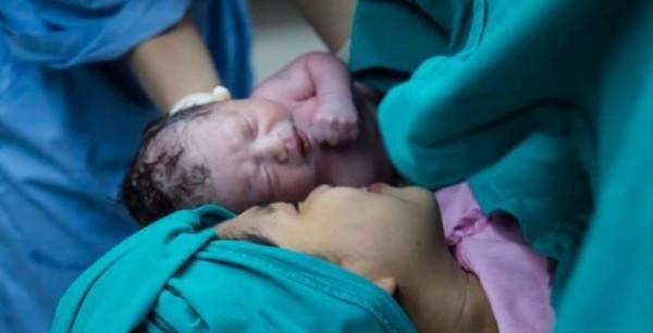 سيدة تضع توأماً بعد شهر من ولادة طفلها الأول