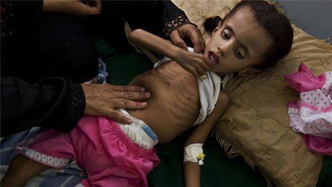برنامج الأغذية العالمي: &#34ظروف تشبه المجاعة&#34 في مناطق باليمن