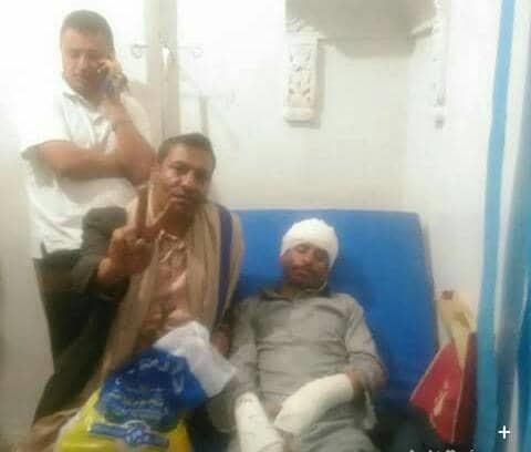 تعرض قيادي مؤتمري وناشط حقوقي بمدينة ذمار للضرب المبرح من قبل مسلحين مجهولين