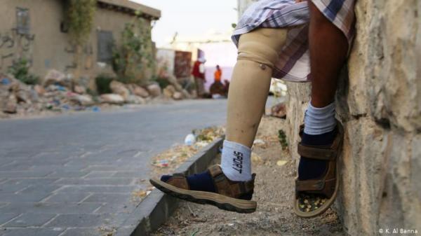 إصابة طفل وبتر يده بقصف حوثي استهدف منزلاً بمدينة تعز
