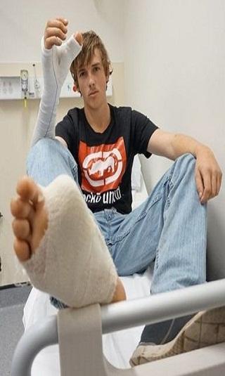 قُطع إبهامه فاستبدله بأصبع القدم