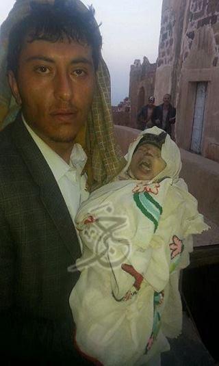 أصغر شهداء صنعاء.. &#34إبراهيم&#34 عمره شهر واحد قصفته طائرة سعودية