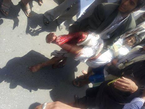 مصادر طبية : 4 قتلى ونحو 40 مصاباً جراء أحداث رئاسة الوزراء