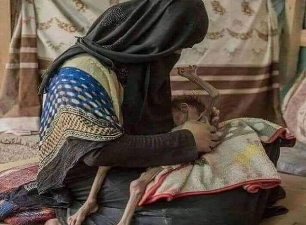 &#34ثالوث مرعب&#34 يوصل المواطنين بمناطق الحوثيين لـ&#34المجاعة&#34