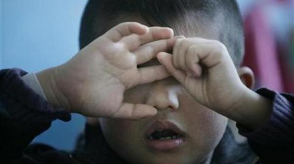 اكتشاف سبب اصابة الاطفال بالتوحد
