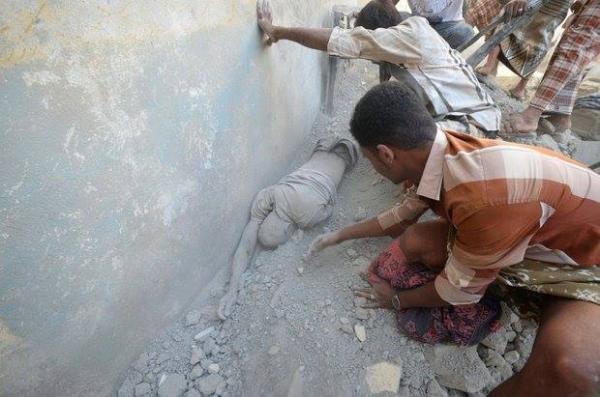 نعتذر لنشر الصور| غارات سعودية أحرقتهم أحياء.. مجزرة_الزيدية في اليمن (+18)