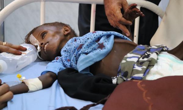 الغارديان: أطفال اليمن يموتون جوعا بعد إغلاق المنافذ