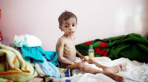 مسؤول أممي: 12.3 مليون طفل يمني يعانون نقصاً في الحاجات الأساسية