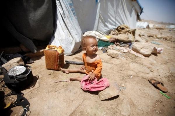 افتتاحية &#34الغارديان&#34 حول اليمن: التاريخ لن يرحمنا