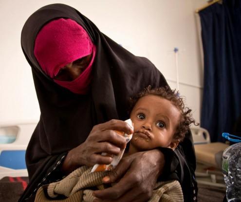 ارتفاع نسبة الأطفال الذين يعانون من سوء التغذية الحاد في اليمن إلى 90٪ خلال 3 أعوام
