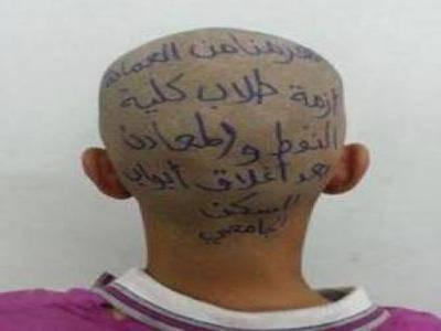 طالب يمني يبتكر طريقة جديدة للتعبير عن مطالبه بالكتابة على رأسه (شاهد الصورة)