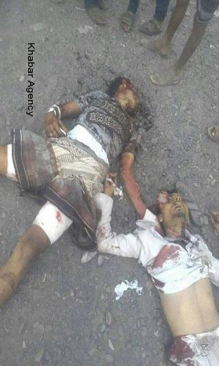 بالصور- هكذا بدت جثث 3 قتلى برصاص مسلحين حوثيين جراء تداعيات أزمة الغاز في إب (18+)