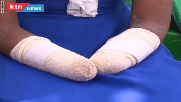 قضية أحدثت الكثير من الجدل.. رجل قطع يدي زوجته بحجة عدم إنجابها