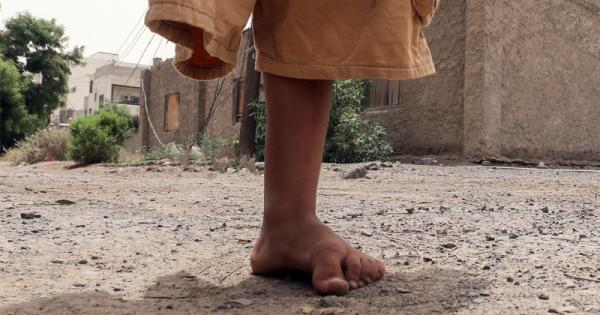 """أسباب الصمت الدولي المريب على جرائم وألغام الحوثيين على لسان مستشار وزير الدفاع """"تصريح"""""""