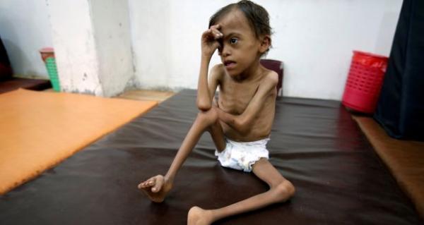تقرير أممي: مليشيات الحوثي جعلت الحرب وسيلة للثراء الفاحش