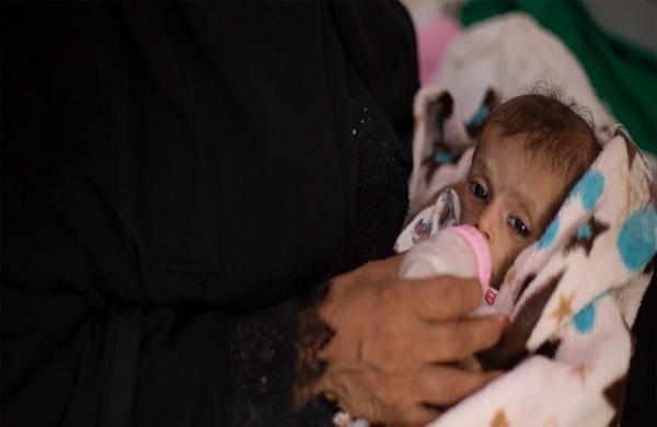الأمم المتحدة: الملايين من اليمنيين يحتاجون لإنقاذ طارئ للبقاء على قيد الحياة