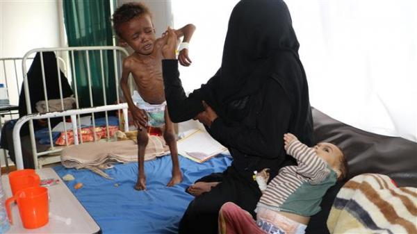 ارقام صادمة رصدتها المنظمات الدولية والامم المتحدة بشأن وضع الحصار على اليمن