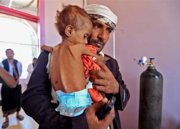 يونيسف: أكثر من 12 مليون طفل في اليمن يحتاجون مساعدات عاجلة